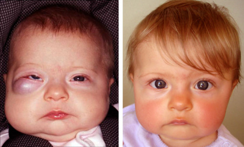Charley-Jean at three months of age before (left) and five months after (right) propranolol treatment, underpinned by discoveries by the team at the GMRI and their collaborators